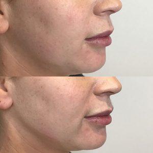Peninsula Aesthetics Dermal Filler Face